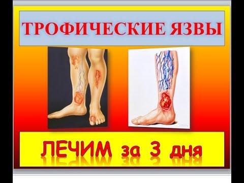 Трофические язвы на ногах. фото, лечение, почему образуются, чем мазать