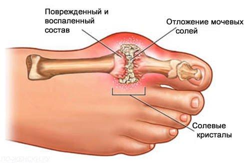 Подагрический артрит: лечение, причины и симптомы заболевания, диагностика, диета
