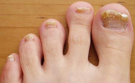 Течение и возникновение паховой эпидермофитии, ее симптомы и лечение