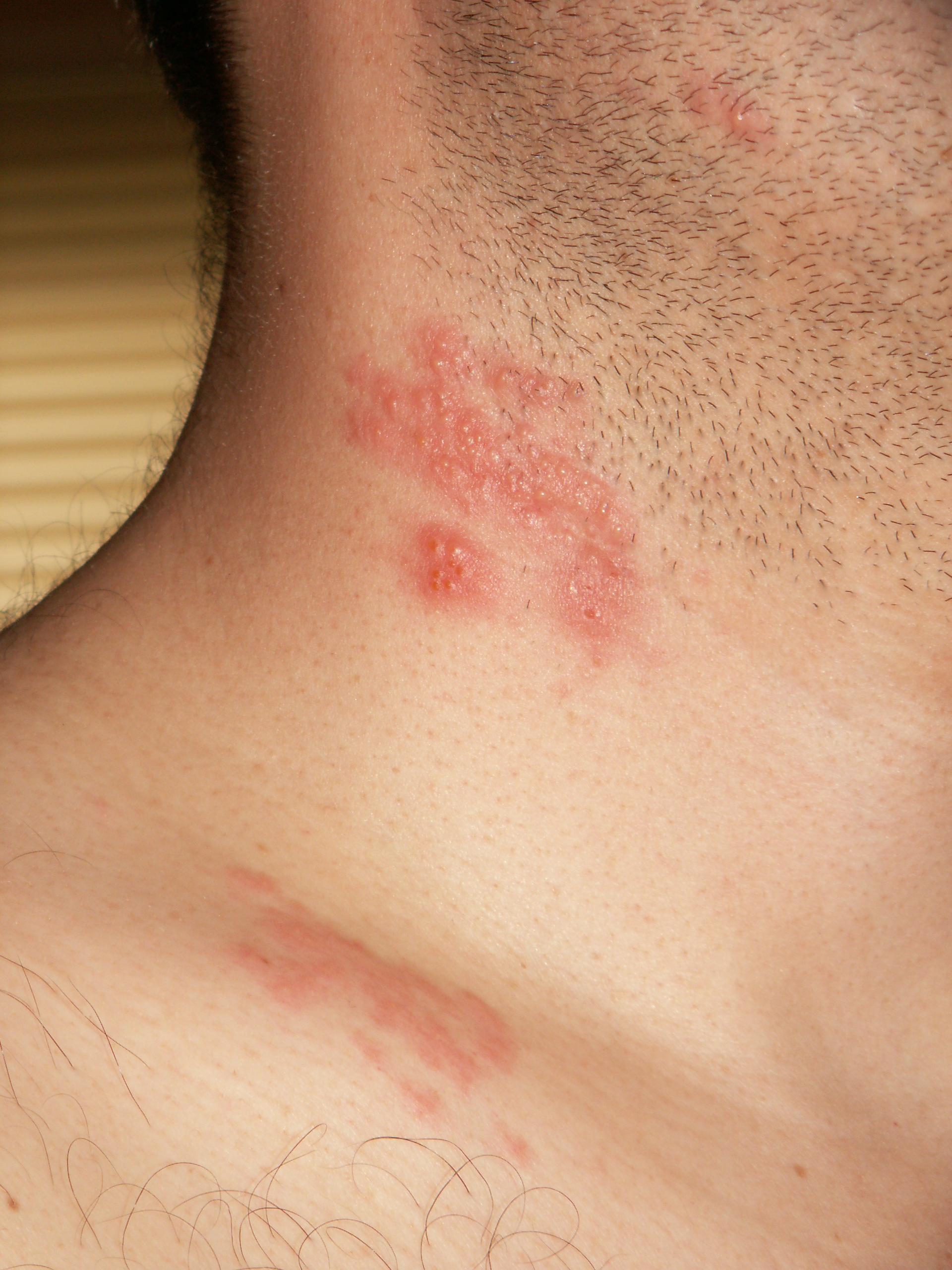 Что такое чешуйчатый лишай и как его лечить