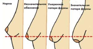 Грудь на ранних сроках беременности: какие изменения происходят / mama66.ru