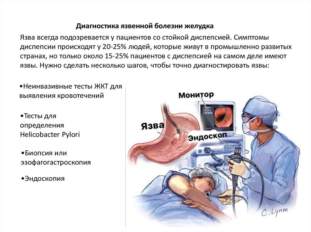 Язвенная болезнь желудка и двенадцатиперстной кишки: классификация, диагностика, клиника осложнений и лечение