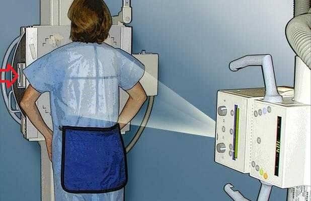 Нужны ли рентген и флюорография при диагностике воспаления легких