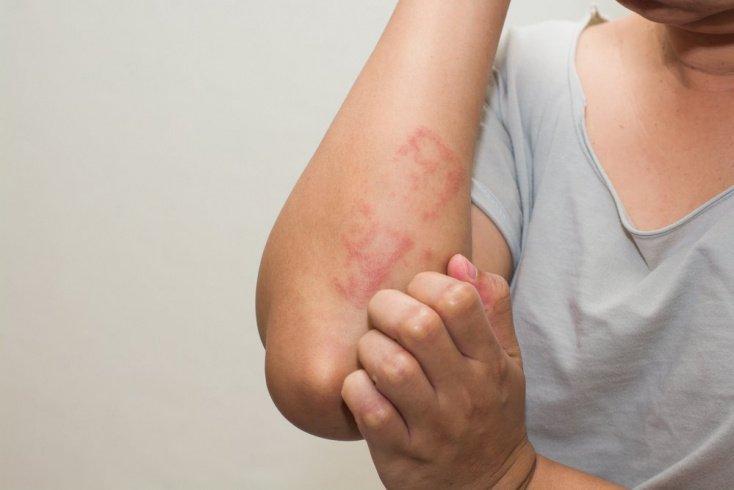 Главное о лечении токсико-аллергического дерматита на теле