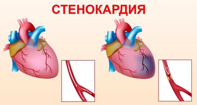 Препарат карвелис