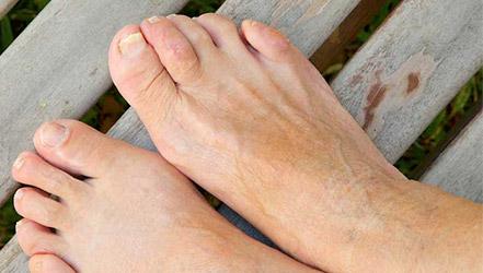 Диета при грибке ногтей на ногах