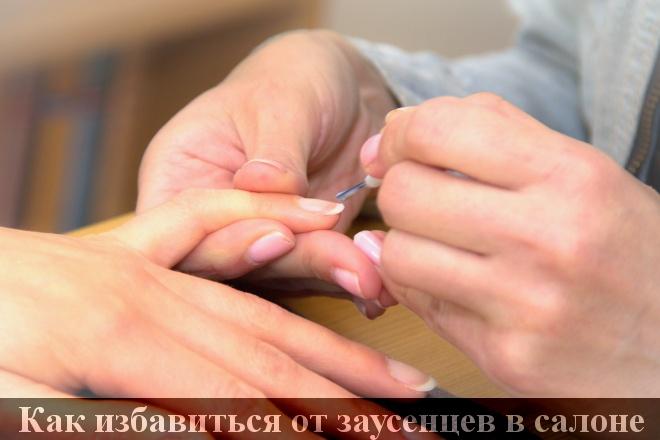 Как избавиться от заусенцев на руках — средства лечения в домашних условиях