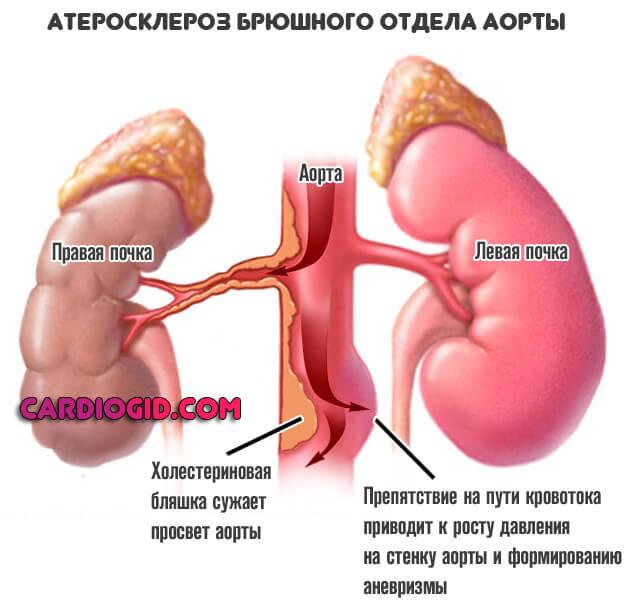 Аневризма брюшной аорты: причины заболевания, основные симптомы, лечение и профилактика