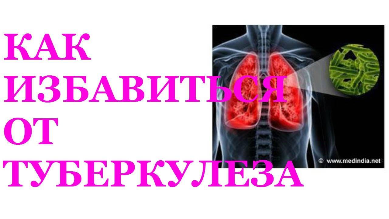 Способы лечения туберкулеза в домашних условиях