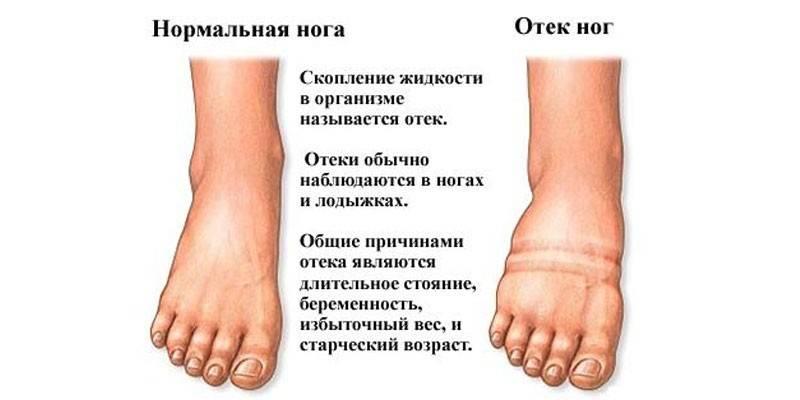 Урологический (мочегонный) сбор инструкция по применению, отзывы и цена в россии