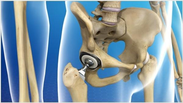 Основные ошибки в установке эндопротезов коленного и тазобедренного сустава