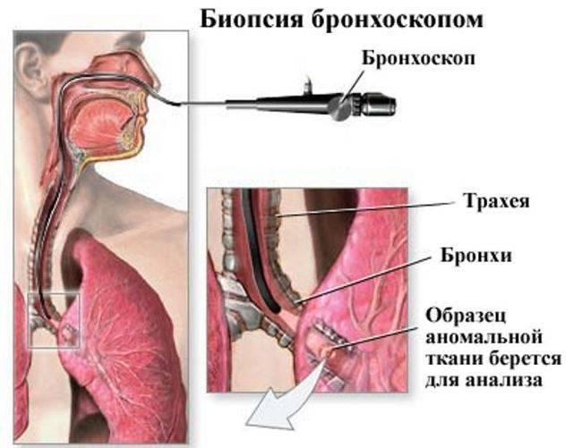 Бронхоскопия - как проводится? виды и показания к исследованию
