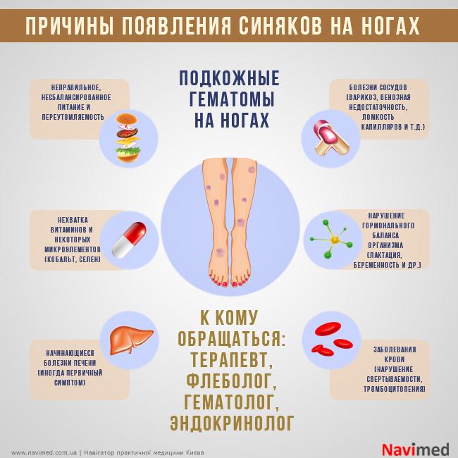Почему появляются синяки на ногах без ударов, диагностика, прогноз