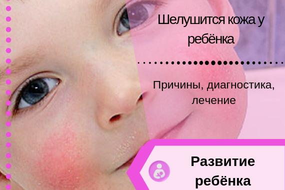 Шелушится кожа у новорожденного на теле, руках и ногах, на голове: что делать