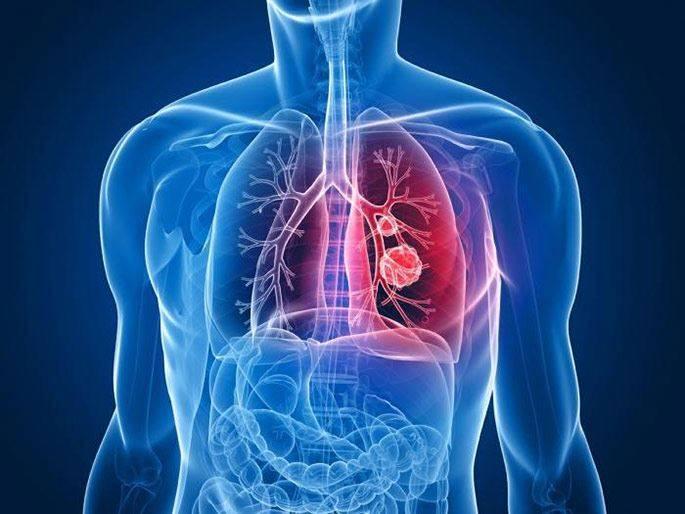Чем кашель при раке лёгких отличается от простудного