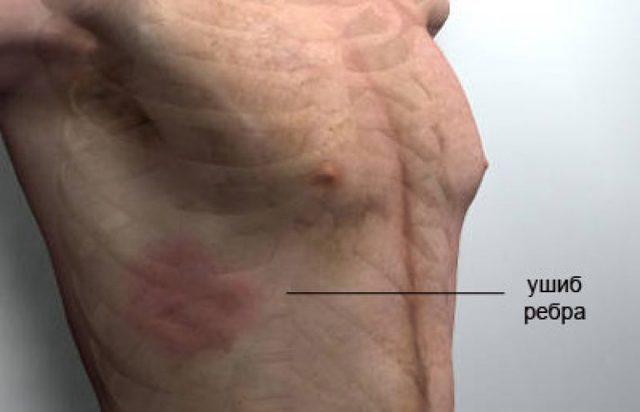 Ушиб ребра: первая помощь, симптомы и лечение