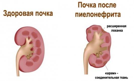 Симптомы и лечение туберкулеза у детей