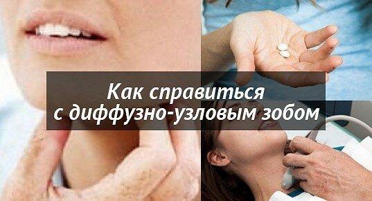 Щитовидка зоб 1 степени
