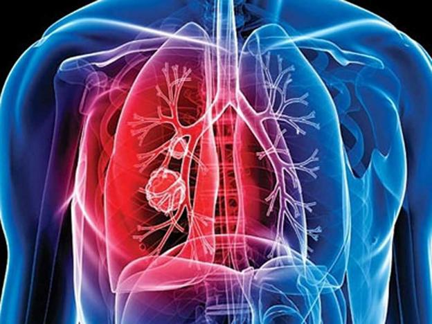 Основные симптомы и первые признаки развития туберкулеза у мужчин