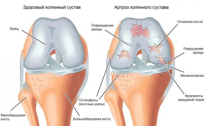 Болезни бронхов: симптомы и лечение