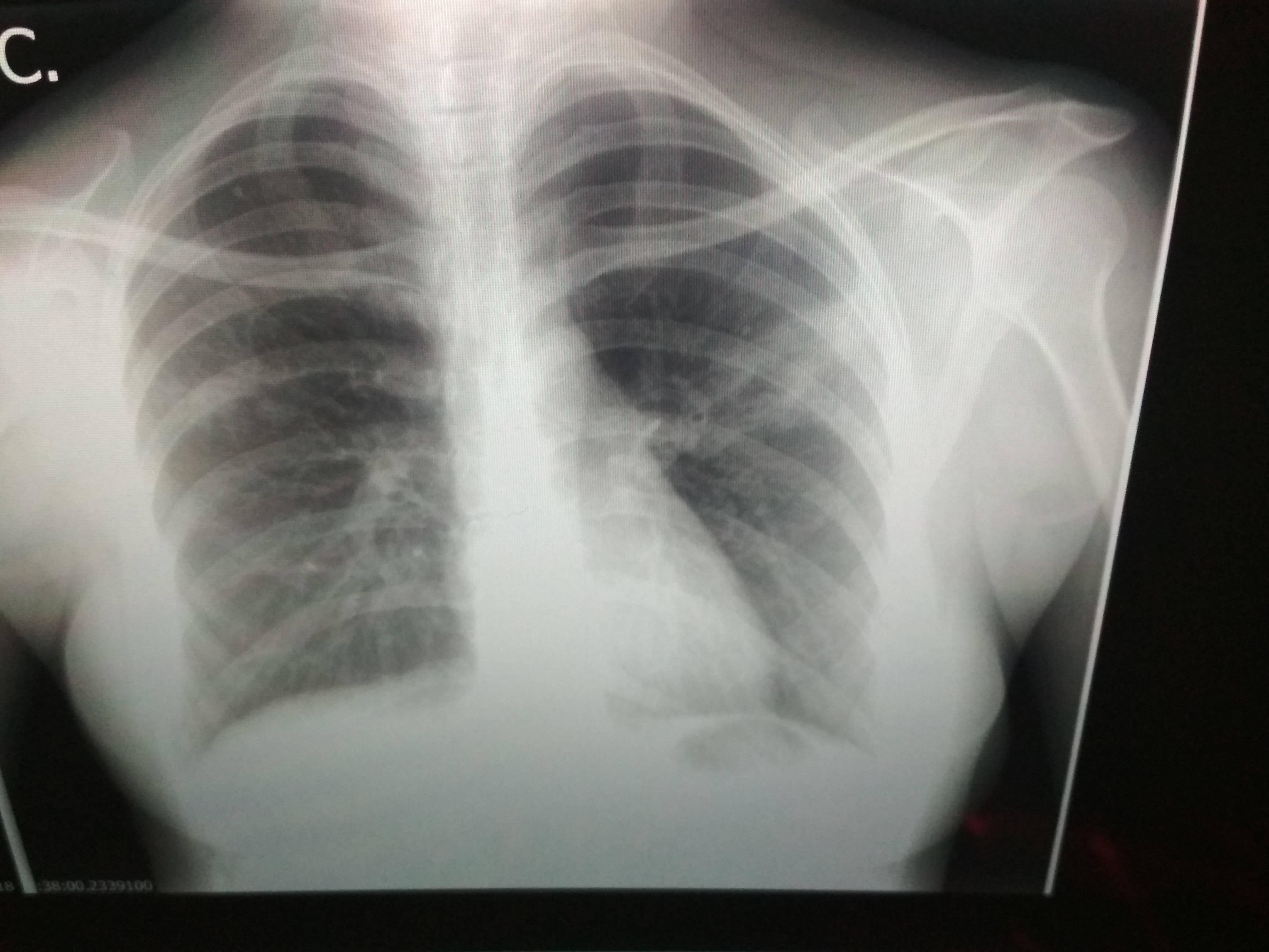 Вопрос №10 — какова вероятность перехода пневмонии в туберкулёз?