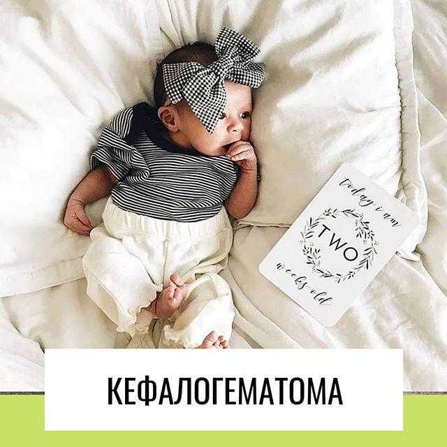 Влияние кефалогематомы на развитие ребенка