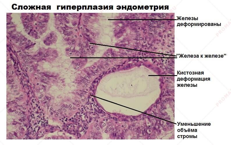 Железистая гиперплазия эндометрия: причины, диагностика, принципы лечения