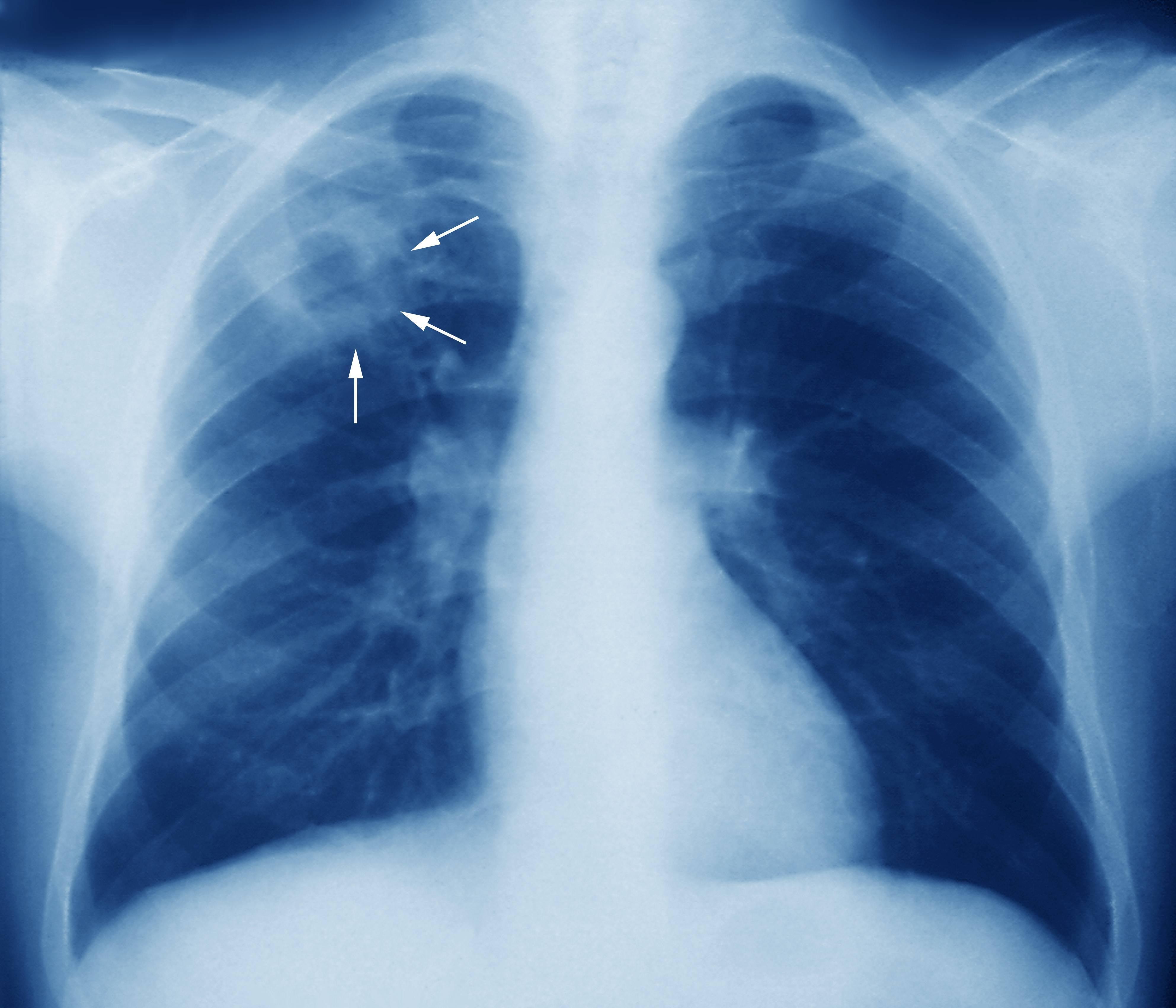Множественная лекарственная устойчивость при туберкулезе: виды и принципы лечения