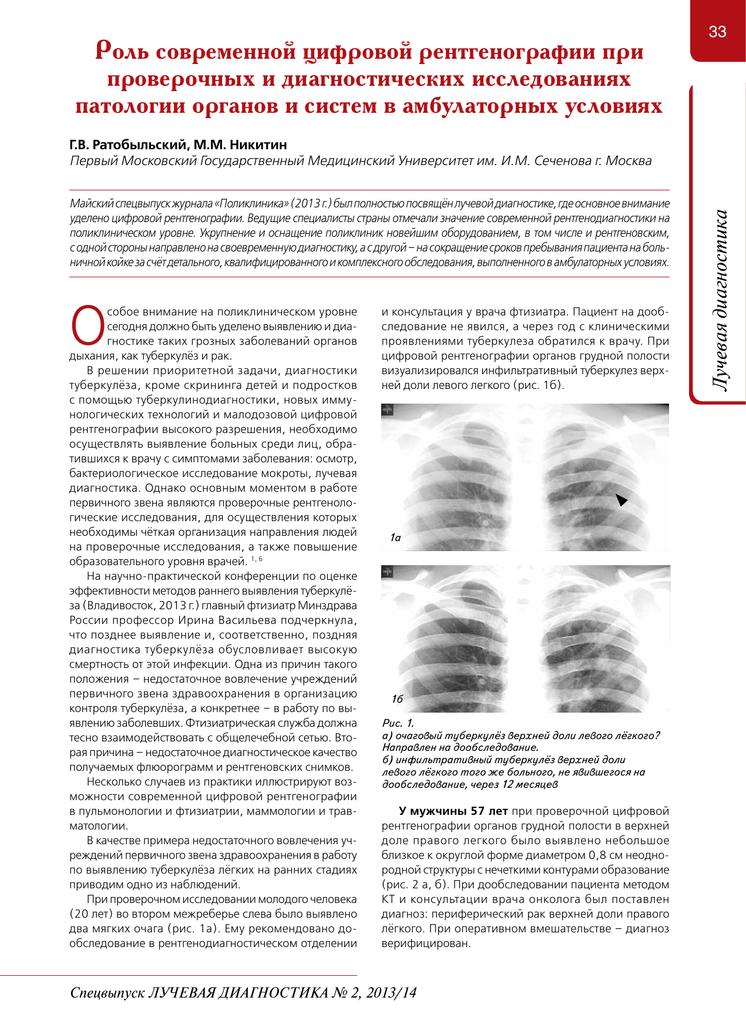 Туберкулез. симптомы, признаки, стадии и лечение у взрослых. народные средства, медикаменты