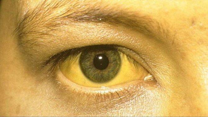 Желтый цвет кожи у взрослого человека. причины, почему, как избавиться