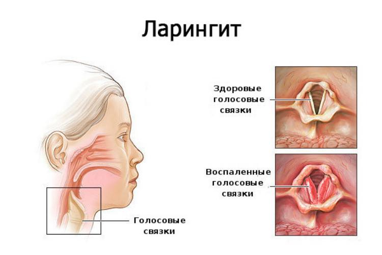 Хронический фарингит: симптомы, причины и лечение заболевания
