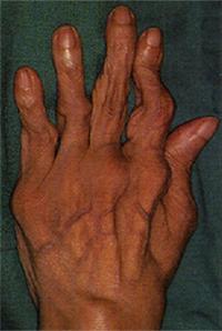 Симптомы и лечение артроза пальцев рук