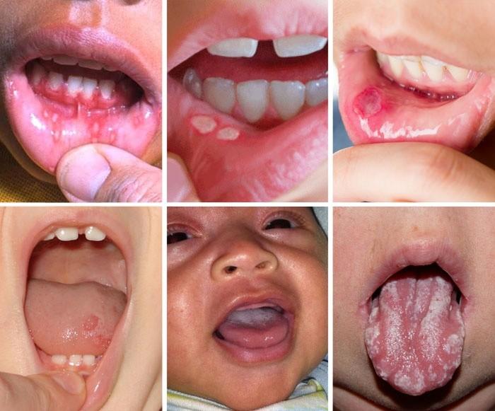 Стоматит (афтозный, кандидозный, герпетический) – лечение у взрослых