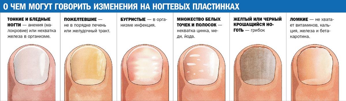 Причины появления полосок на ногтях