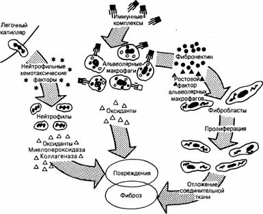 Воспалительное заболевание альвеолит легких. особенности