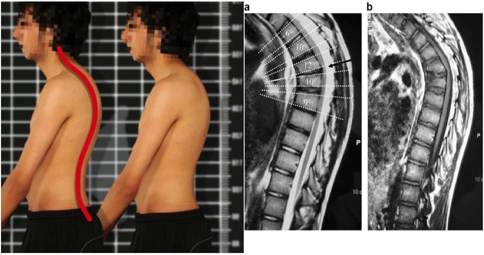 Болезнь шейермана-мау: причины, симптомы и методы лечения патологии позвоночника