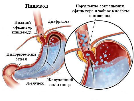 Классификация основных заболеваний пищевода