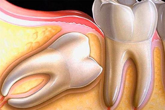 Зубы мудрости: особенности роста и удаления