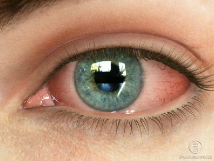 Глазные мази от конъюнктивита для детей