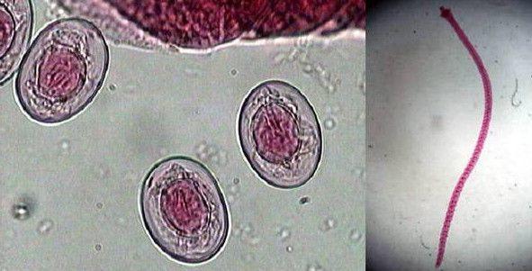 Карликовый цепень — возбудитель гименолепидоза: симптомы, диагностика, лечение инвазии