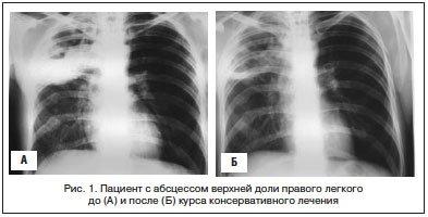 Туберкулез это рак легких или нет