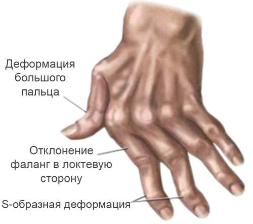 Ревматоидный артрит – симптомы, причины, диагностика и лечение