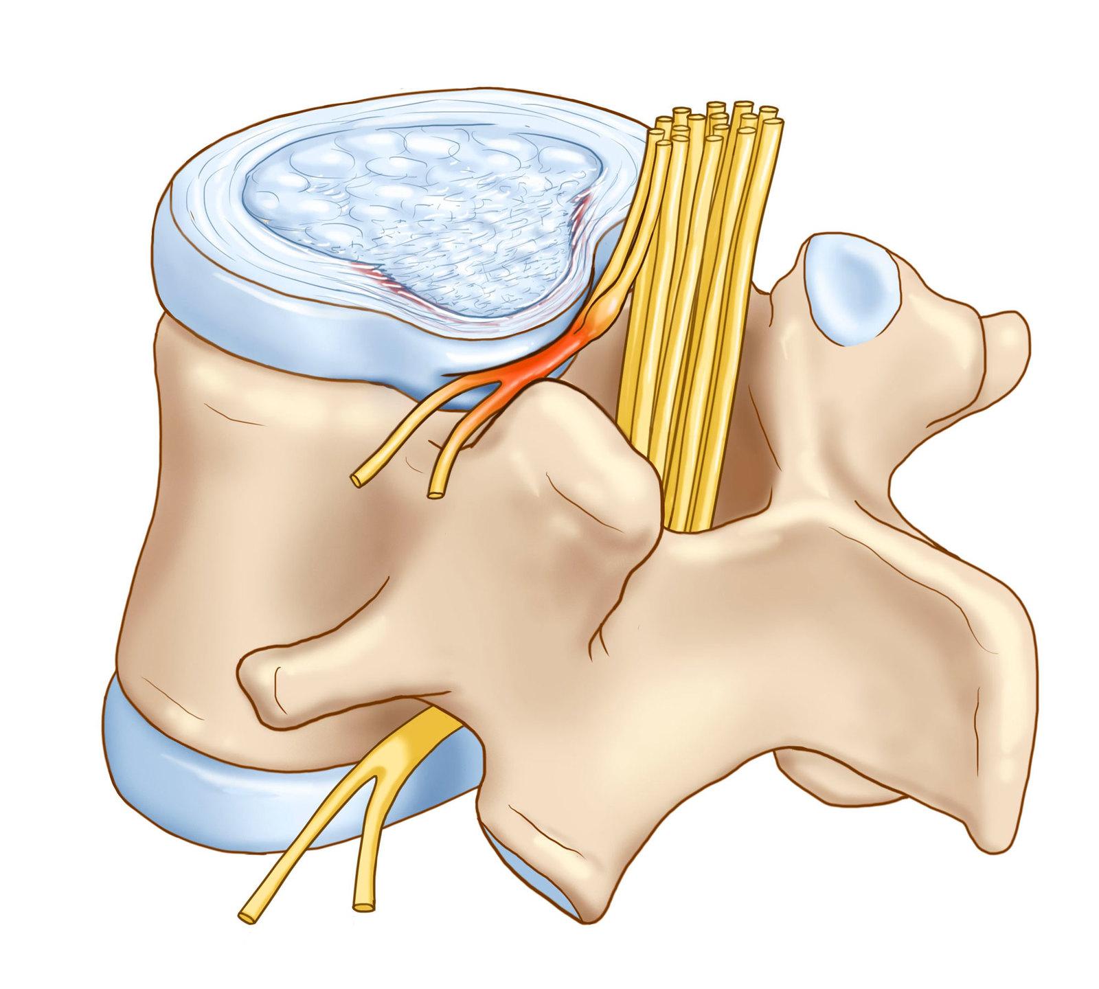 Уколы от боли в спине, сильные обезболивающие уколы при болях в спине и пояснице – название лекарства