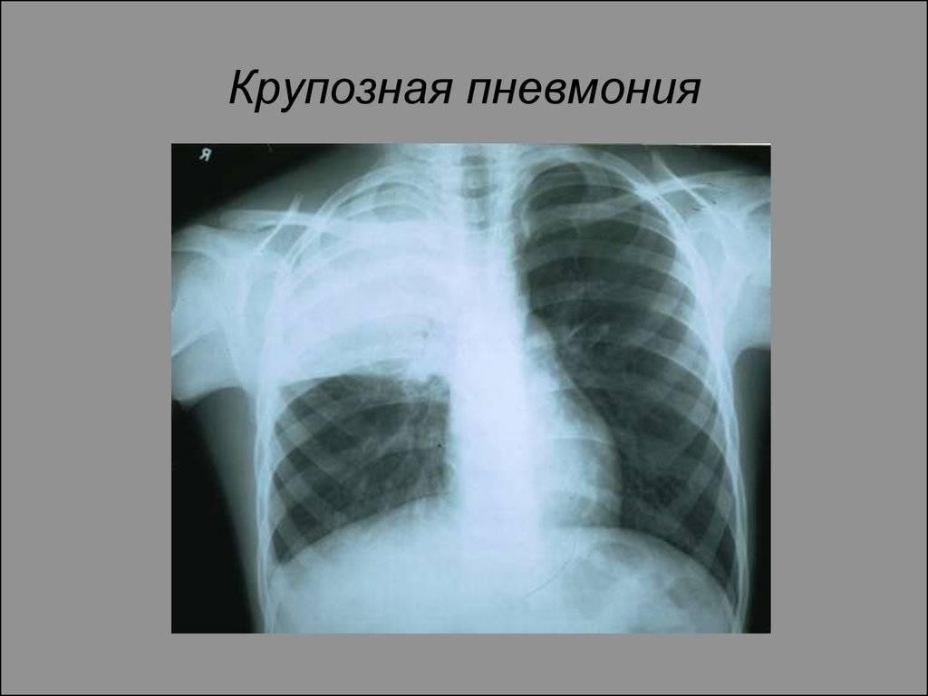 Пневмония: симптомы у взрослых, лечение и профилактика