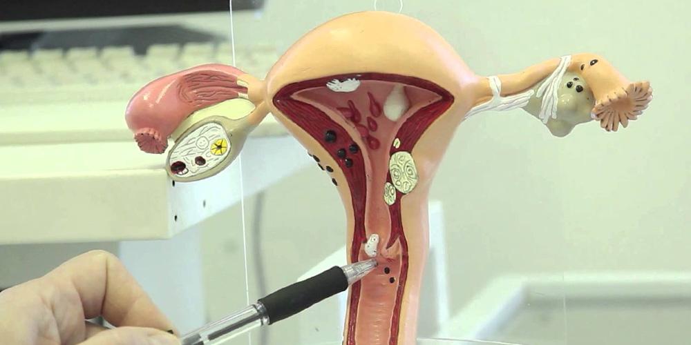 Ретенционные кисты шейки матки: особенности и лечение