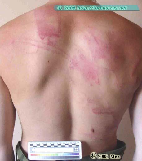 Гематома: причины заболевания, основные симптомы, лечение и профилактика