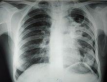 Какой бывает мокрота при туберкулезе