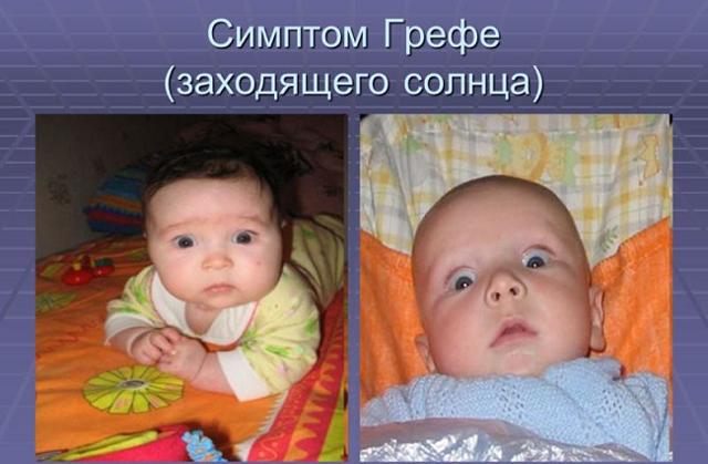 Внутричерепное давление у ребенка: симптомы, признаки, причины. лечение внутричерепного давления у ребенка. внутричерепная гипертензия у детей