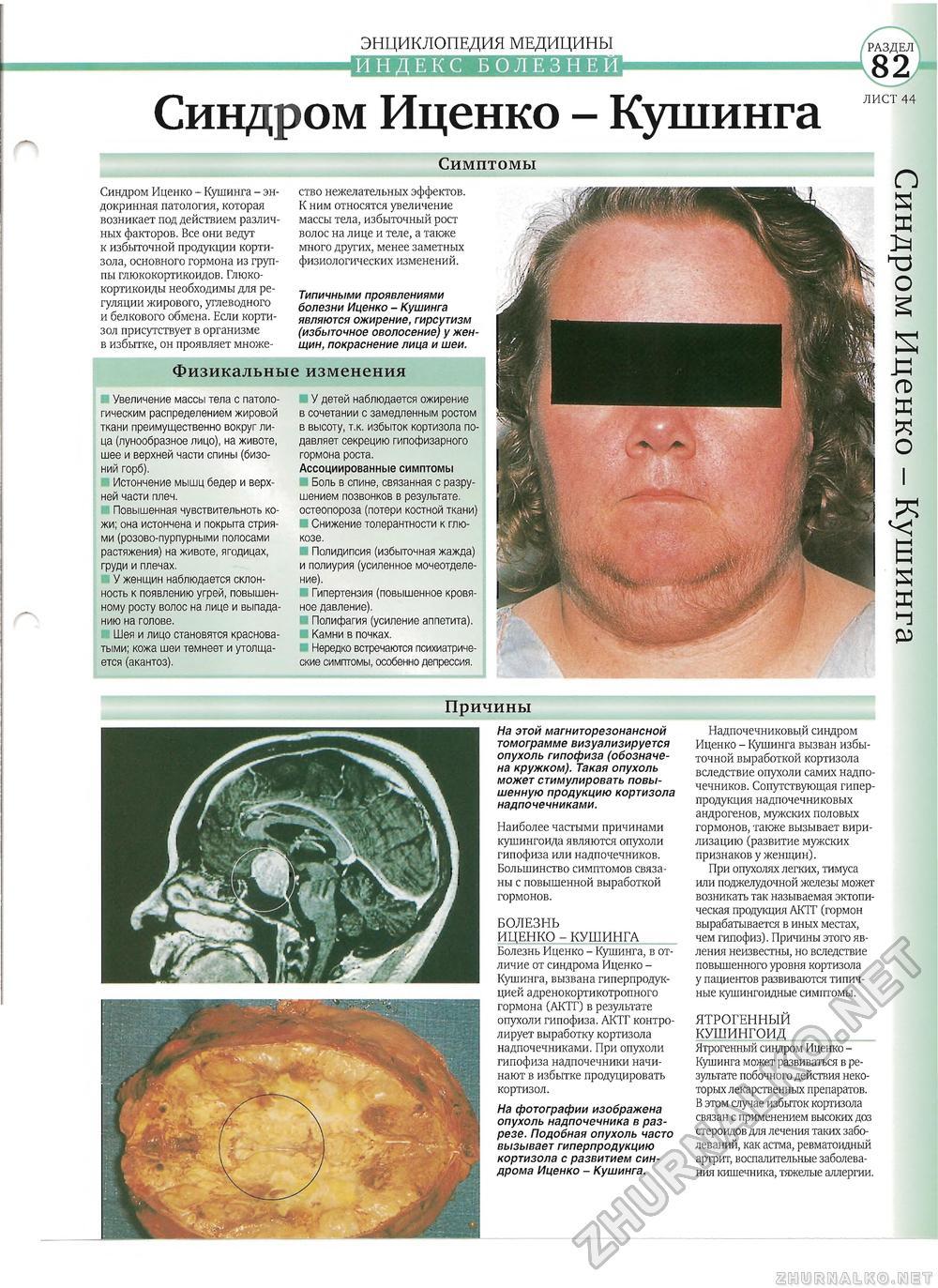 Вторичный гиперкортицизм или болезнь иценко-кушинга!