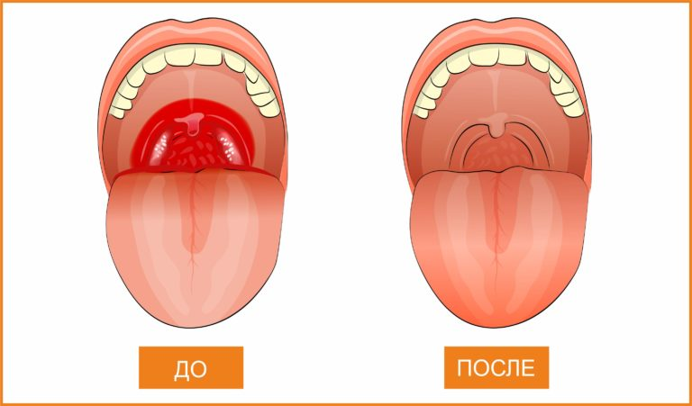 Как питаться после удаления миндалин?